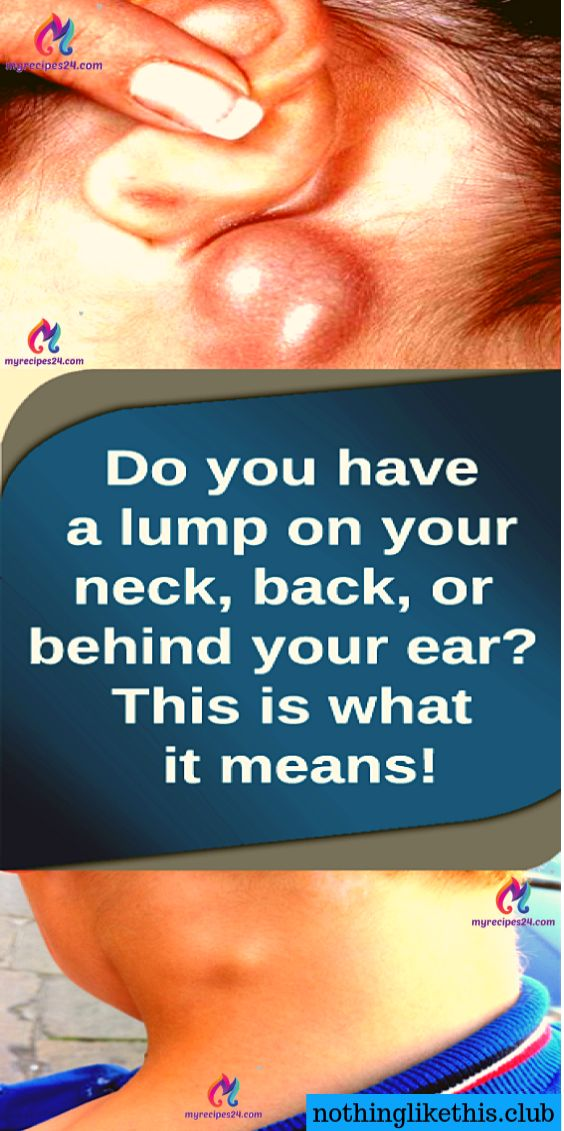 Do You Have a Lump on Your Neck,Back,or Behind Your Ear This Is What It Means !!…