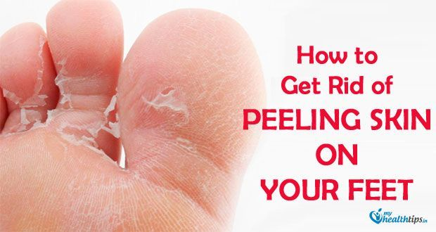 77dde742e7baa79d42514efcb6b6bc77 - How To Get Rid Of Dry Scaly Skin On Feet
