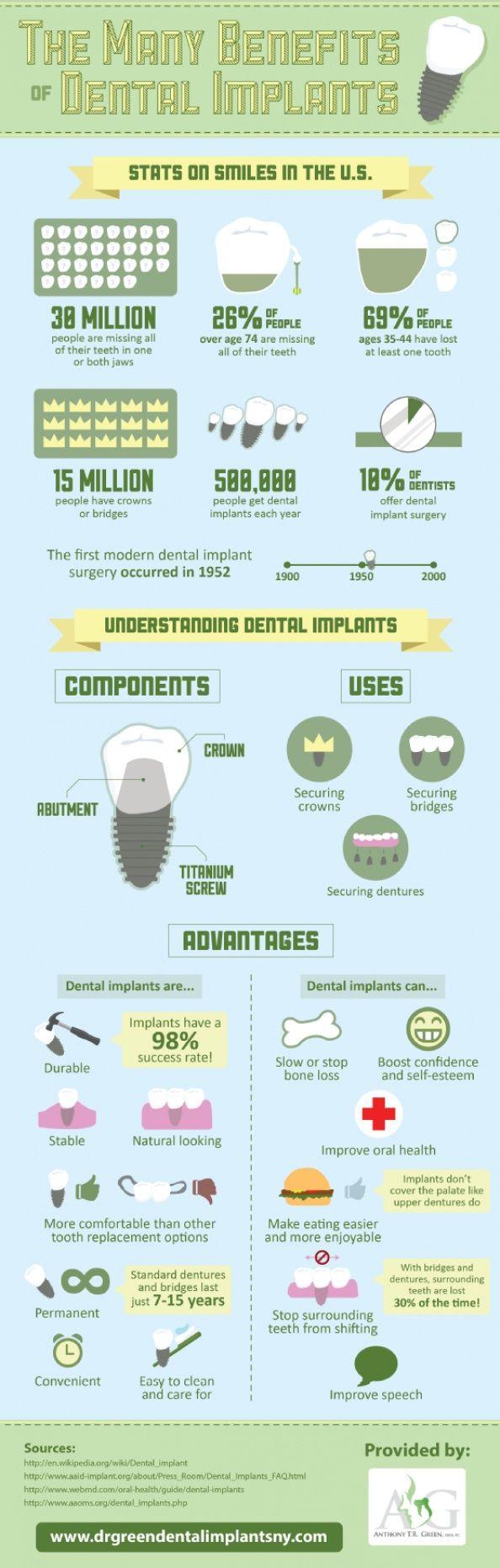 The Many Benefits of Dental Implants Infographic #DentistOrem