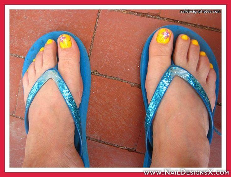 mix yellow toe nail design