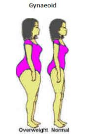 non-surgical weight loss options in houston