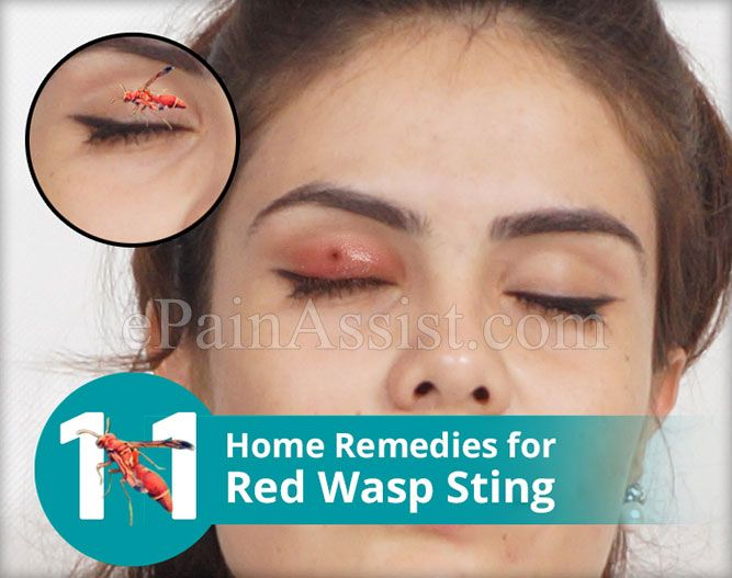 11 Home Remedies for Red Wasp Sting