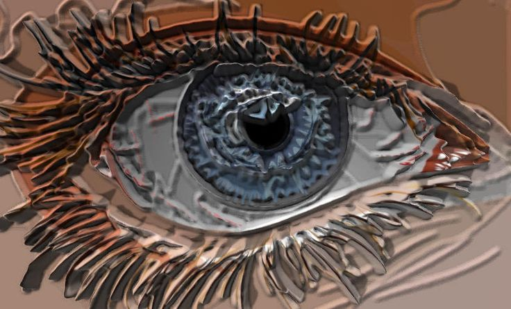 Sjögren: Inflamación auto-inmunitaria, con destrucción de las glándulas lagrimales y salivales, Clasificación:  Primario:  Afecta a las mujeres con mayor frecuencia que a los hombres: La presentación tiene lugar en la vida adulta, con sensación arenosa en los ojos y sequedad de boca.  Secundario:  Artritis reumatoide, lupus eritematoso sistémico (LES), esclerosis sistémica, enfermedad mixta del tejido conjuntivo, cirrosis biliar primaria, hepatitis activa crónica y miastenia gravis.