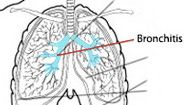 Acute Bronchitis  -  Blue lips