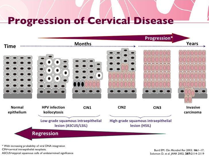 Cervical cancer nursing case study