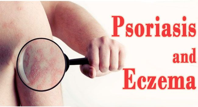 20 Best Home Remedies For Psoriasis and Eczema That Work | Healthy Eon