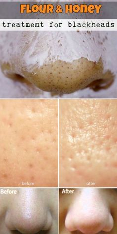 7 DIY Blackhead Remedies To Try At Home – Toned