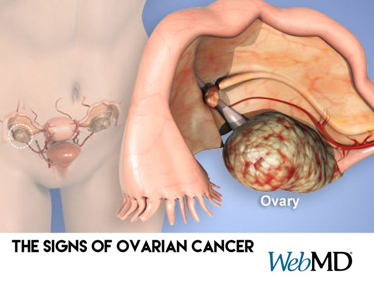 The risk factors for ovarian #cancer are family history, age, and obesity. The symptoms are easy to dismiss as normal. See what they are: