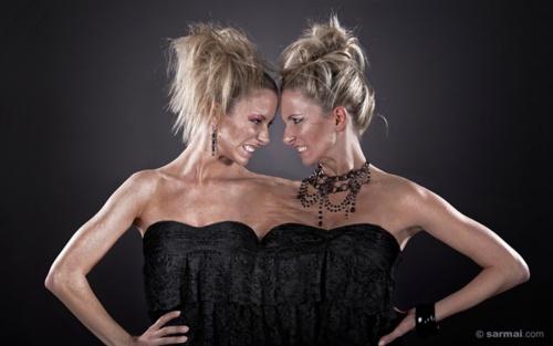 l u00edvia  u0026 emese nagy  conjoined twin models
