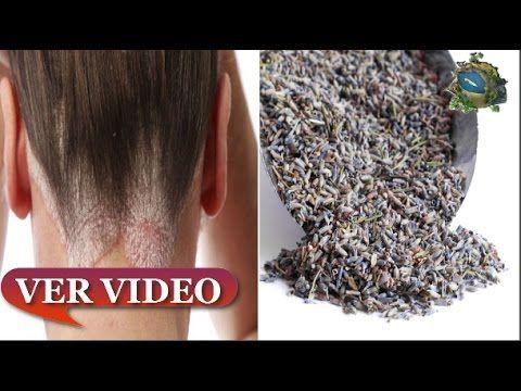 Remedios para la seborrea o dermatitis seborreica - Remedios En Tu Propi...