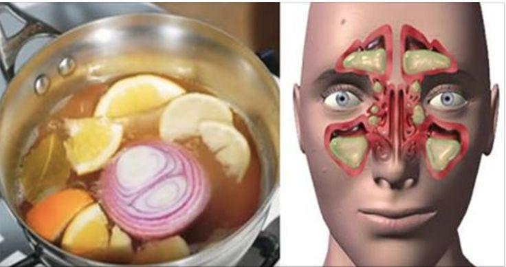 Vamos ensinar duas excelentes receitas caseiras para tratar alergias respiratórias, rinite, sinusite, gripes, resfriados, tosse e nariz entupido.As duas têm a cebola como o ingrediente-chave.
