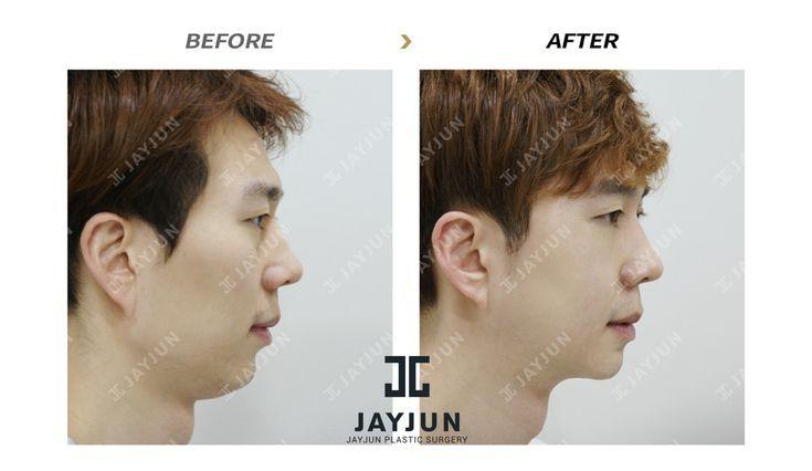 77f0d050f7fc239b02a440c5fe07eaf4 - How Much Is It To Get Plastic Surgery In Korea