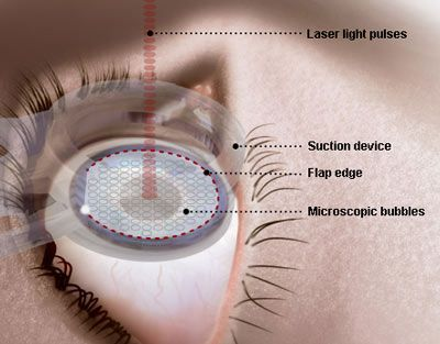 Corrective Eye Surgery -Visit Your Eye Doctor