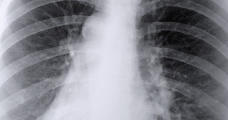 Your lungs are a vital part of your respiratory system, which is in charge of breathing. Their function is to bring in oxygen so it can be distributed throughout your body. Every day, your lungs are bombarded by toxins, such as environmental pollution, allergens, dust, cigarette smoke and microorganisms. These substances can scar your lungs,...