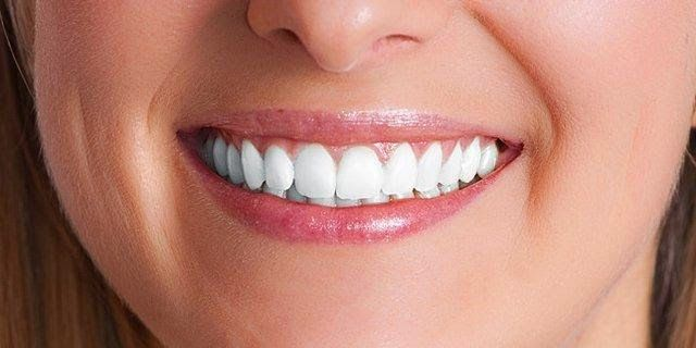 Are you searching for the best Dental Implants in Melbourne? Then, We are here to help you in finding best dentist for your implant treatment.