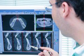digitales Röntgen / DVT beim Zahnarzt