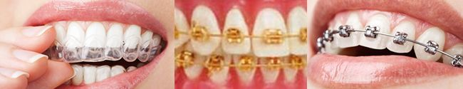 Dental Braces Dental braces (also known as orthodontic braces, or braces) are devices used in orthodontics that align and straighten teeth and help to position them with regard to a person's bite, while also working to improve dental health. They are often used to correct underbites, as well as malocclusions, overbites, cross bites, open bites, deep bites, crooked teeth, and various other flaws of the teeth and jaw. Braces can be either cosmetic or structural...