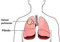 Cancerul pulmonar consta in cresterea necontrolata a celulelor anormale in unul sau in ambii plamani. Cele doua tipuri de cancer pulmonar sunt:http://www.medpont.ro/oncologie/cancerul-pulmonar/
