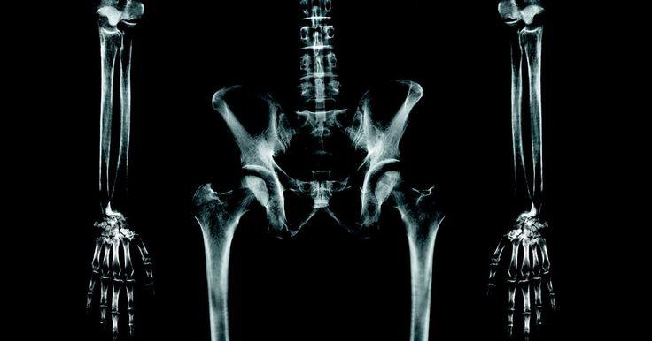 Riscos da terapia de descompressão da coluna vertebral. Descompressão medular é um método para atenuar dores causadas por uma hérnia ou hérnia de disco. Ela é usada para aliviar dores nas costas, pernas, pescoço e braço. Este método de tratamento pode também ser utilizado após uma cirurgia na coluna mal sucedida, mas tem riscos associados. A descompressão da coluna vertebral é considerada menos ...