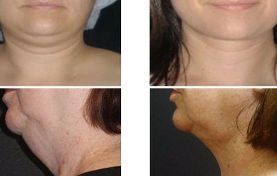 La eliminación de grasa mediante #cirugía plastica no solo puede mejorar tu cuerpo sino también tu rostro. La eliminación de la #papada estiliza y rejuvenece el rostro, #lipolaser