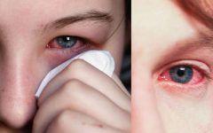 Conjuntivite Alérgica – O que é, Tipos, Causas e Tratamentos