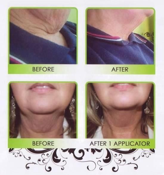 Neck flab...just saw an advertisement for laser surgery!  Ohhh no.  They just need a wrap.  #Nosurgery required:)  All natural!