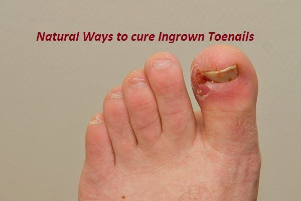 Natural Remedies to treat Ingrown Toenails  An Ingrown toenail, also called onychocryptosis, is develops when the sides of your toenail grow and curve i...