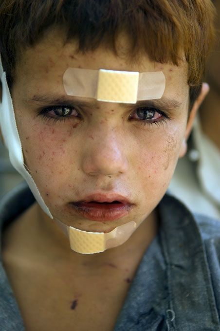 Khalid, 7 years old, sits outside of the medical tent of a US military base. Civilians throughout Afghanistan have been victims of both Taliban and US attacks.