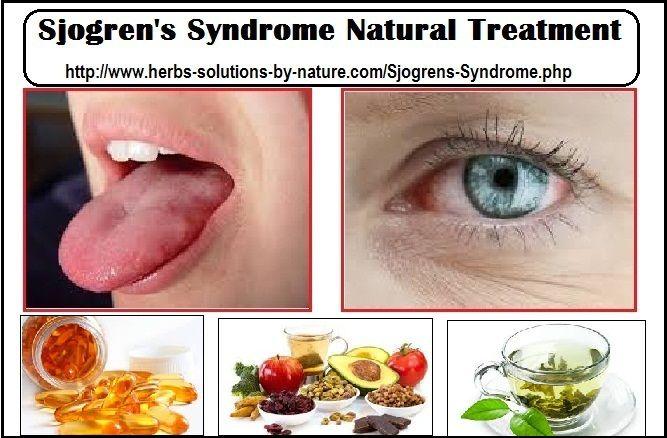 Sjogren S Disease Natural Remedies