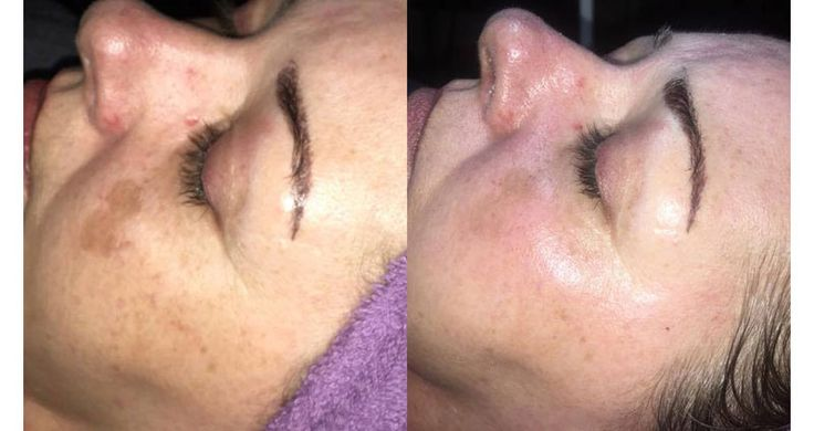 Oxygen Facial Instantly Plumps Brightens