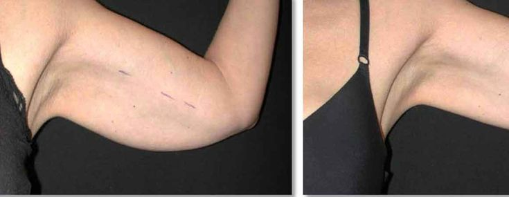 Arm liposuction results 13 – Liposuction before and after