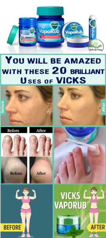 20 Surprising Uses Of Vicks VapoRub You Didnt Know Yet