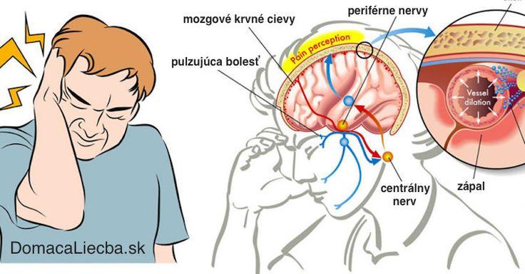 Ako okamžite zastaviť migrénu s pomocou soli - Domáca liečba