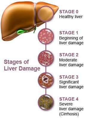 Liver failure or hepatic insufficiency is the inability of the liver to perform its normal synthetic and metabolic function as part of normal physiology. Two forms are recognised, acute and chronic.