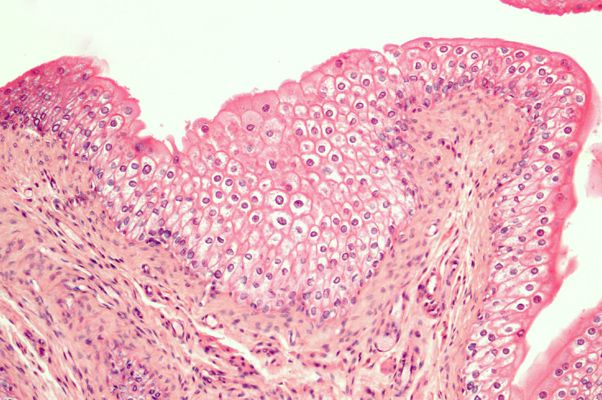 muscle and transitional epithelium Transitional epithelium is a stratified epithelium in which the shape of the surface  cells changes (undergoes transitions) depending on the degree of stretch.