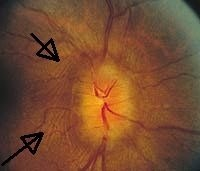 Circumferential retinal folds in peripapillary region due to papilledema.  The main cause of optic nerve head swelling is blockage of the axoplasma transport and the blockage occurs at the lamina cribrosa.  The optic nerve head can swell to the extent where it is extended forward into the vitreous as well as laterally. This lateral swelling causes the retina to buckle inward at the temporal aspect of the optic nerve head. The buckling is know as Paton's lines or folds.