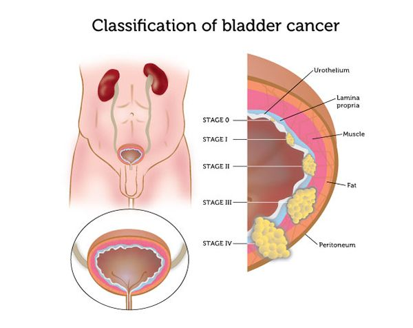 How Bladder Cancer is Diagnosed