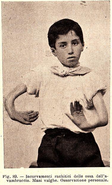 """""""Incurvamenti rachitici delle ossa dell'avambraccio"""", Italy, 1900s ( Stunted…"""