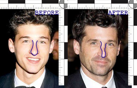 Nose Job...Ashley Tisdale? | Yahoo Answers