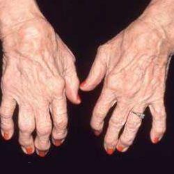 Top 9 Causes Of Rheumatoid Arthritis