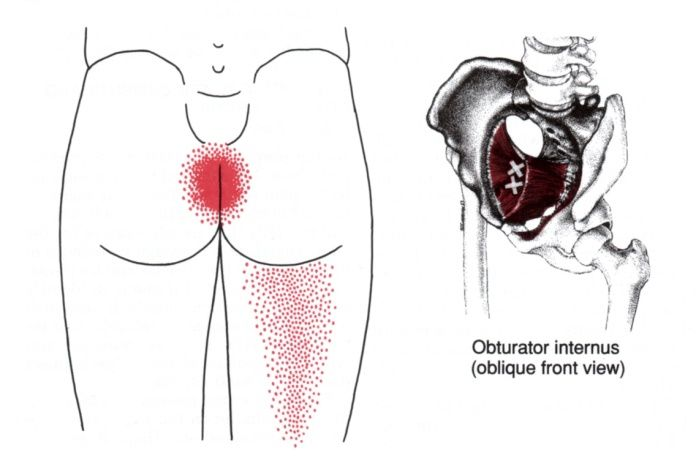 Obturator Internus | The Trigger Point & Referred Pain Guide