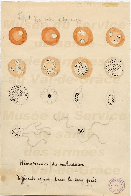 Illustration drawn by Laveran of various stages of malaria parasites as seen on fresh blood
