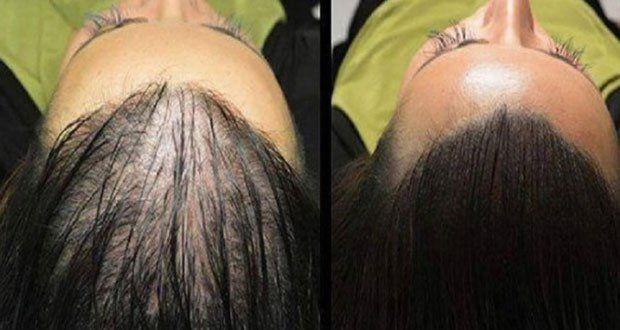 La perte de cheveux est un problème qui affecte de nombreuses personnes de nos jours, sans distinction d'âge ... >>