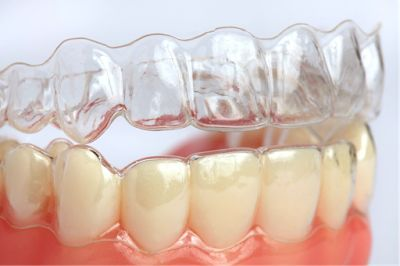Here we offer specialist care in Invisalign Treatment in Melbourne. We use the latest technologies at our dental in Preston.