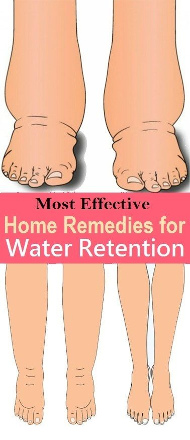 8 Simple Home Remedies for Water Retention | FANDS.COM