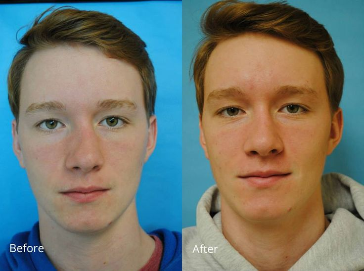 Take a look at the before-and-after photos from a patient I recently met with to fix the alignment on his broken nose.   He had a closed nasal fracture reduction, which means minimally invasive and NO incisions!
