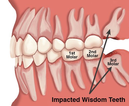 Need to get tooth extraction done from qualified dentists, get in touch with tooth extraction specialist in Melbourne where perfect advice will be given for your dental treatment.
