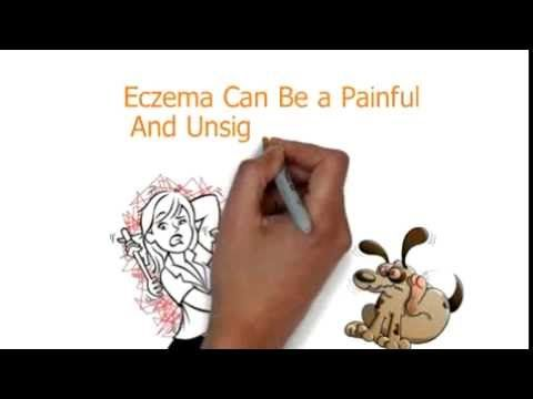 http://www.tcmrecipe.com/about/ the eczema home treatment website features a proven cream for eczema that worked on countless people without nasty chemicals that in the long term make eczema worse. This is a true natural solution for a disease that can be a thorn in the side of sufferers. Visit the site to find out more about this eczema cream.