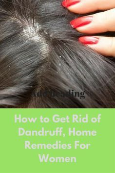 How to Get Rid of Dandruff, Home Remedies For Women How to get rid of dandruff for women, easy home remedies, myths & facts about dandruff, precautions to avoid dandruff, doctor's advice, other useful info.