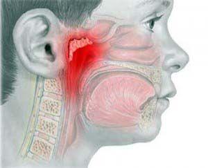 Симптомы и лечение аденоидита  Источник: http://medspravochnaja.ru/bol-v-gorle/simptomy-i-lechenie-adenoidita.html